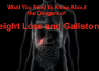What you need to know about the DANGERS of weight loss and gallstones
